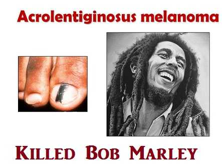 Bob Marley died of foot cancer of melanoma