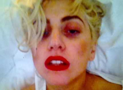 Lady Gaga took months to recover from the pole on face freakish live performance accident.
